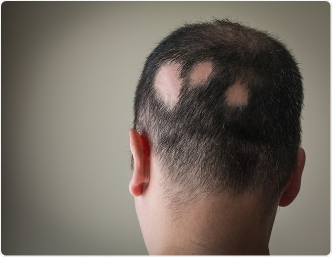 bald patches