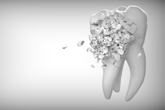 What Do You Do About A Broken Tooth?