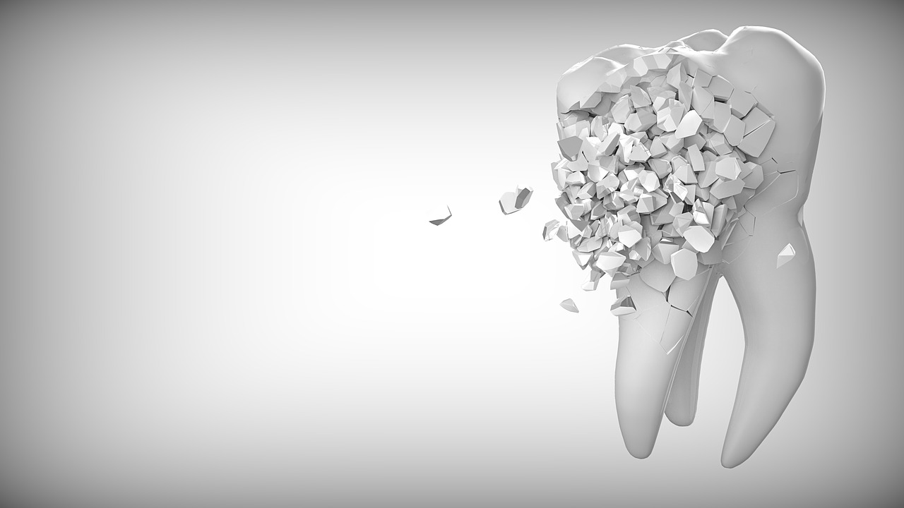 fixing a broken tooth
